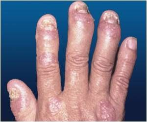 Drugs to Control Hypertension may Up The Risk of Psoriasis