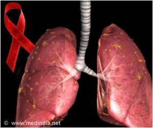 New Vaccine Can Target Tuberculosis