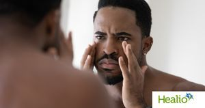 Specialized treatment necessary for acne in skin of color
