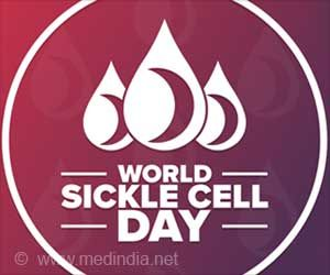 World Sickle Cell Day 2021: Let's Shine the Light on Sickle Cell