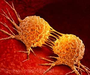 Four-drug Combo is More Effective in Treating Resistant Cancer