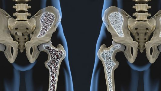 5 Surprising Facts about Osteoporosis Your Doctor Might Not Tell You