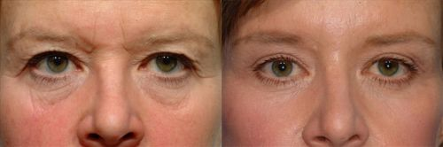 Do I Need a Brow Lift or Blepharoplasty?