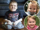 Average-sized parents stunned as 3 of their 4 kids have rare dwarfism