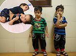 Conjoined twins who shared a stomach and liver are set for a 'better future' after being separated