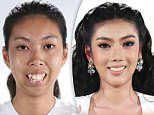 Plastic surgery results shown in before and after photos